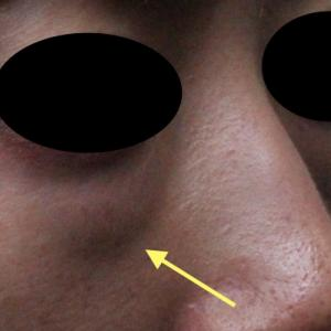 さらば〜目の下の膨らみ〜目の下の脂肪取り(経結膜下脱脂法)
