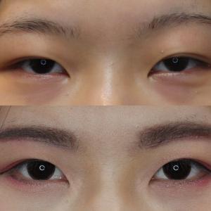 厚い重い瞼を薄く  〜眉下切開は老若男女で幅広い〜