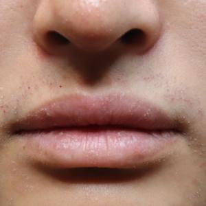 男性必見!! その唇・・・小さくできます!
