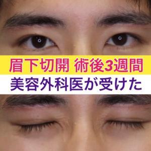 美容外科医の私、眉下切開術受けました。