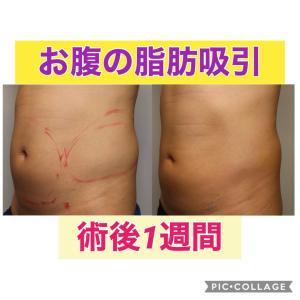 お腹の脂肪吸引 術後1週間