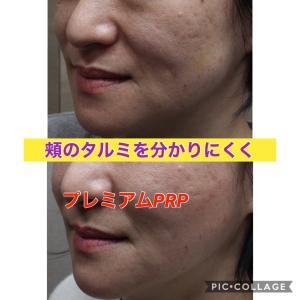 頬のタルミをPRPで解消