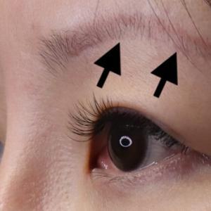 眉下切開の手術後半年の傷跡