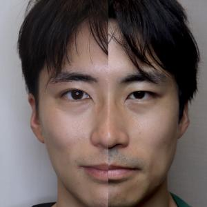 美容外科医 眉下切開を受ける 半年の経過編