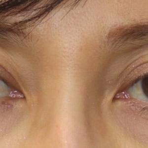 切らない眼瞼下垂+眉下切開