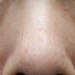 皮膚を切らない(腫れにくい)まぶたのタルミの解消法(脱脂術+PRP)