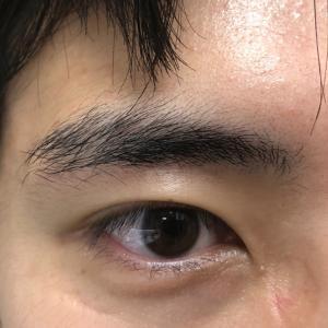 私の実体験「眉下切開の傷跡がほぼ分からなくなった」