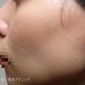 PRP注入で頬のリフトアップ効果
