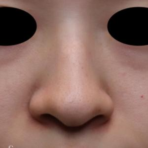 鼻を小さくしたい・・・小鼻縮小(鼻翼縮小、内側法)
