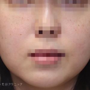 30代 頬と顎下の脂肪吸引でフェイスラインをスッキリ
