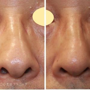 50代男性 鼻のコンプレックスを解消 鼻尖縮小