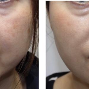 脂肪とモタつきを解消。顔の脂肪吸引と糸リフト