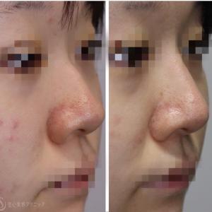 プロテーゼ•骨切り•鼻尖縮小の術後2週間