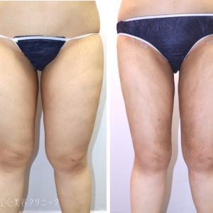 太もも〜お尻の脂肪吸引 術後1ヶ月