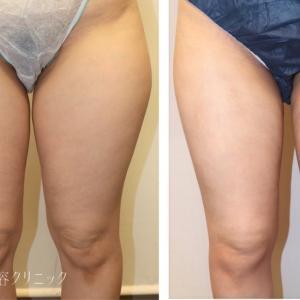 太ももの脂肪吸引 術後1ヶ月
