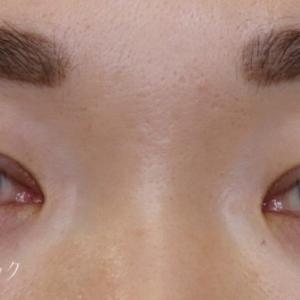 眉下切開の術後1年