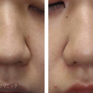 鼻の広がりを小さく 鼻翼縮小(鼻翼挙上)+鼻尖縮小