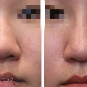 鼻手術の「3種の神器」は・・・プロテーゼ・鼻尖縮小・耳介軟骨移植??