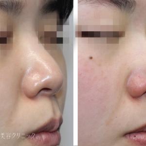 鼻先を尖らせる簡易な方法 3D PCLドーム+鼻尖縮小