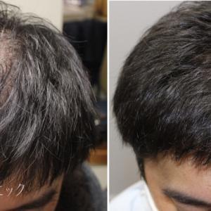 幹細胞を用いた毛髪複合治療