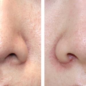 鼻の穴の左右差解消には小鼻縮小(鼻翼縮小)+鼻翼挙上