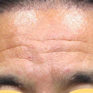 50代男性、額のシワ治療にPRP と眉下切開