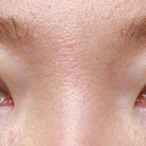 眼瞼下垂手術で目をクッキリ(30代女性)
