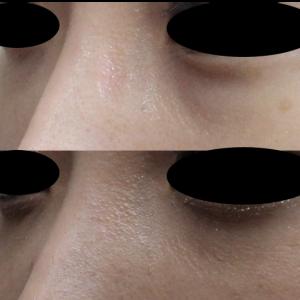 疲れた印象を注入で解決! プレミアムPRP皮膚再生療法