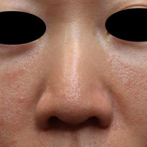 鼻を小さくしたい、尖らせたい!! 傷が残らずに治療 〜鼻尖縮小術と鼻尖形成術〜