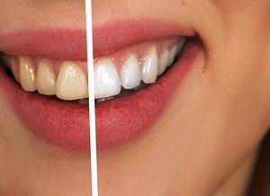 ホワイトニング歯磨き粉って何がいい?
