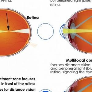 近視の矯正として遠近両用レンズを選択する