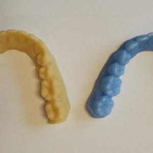 下の歯並びの変化について