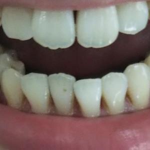 【3クール ハード13日目】下の歯並びの変化!