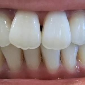 【1クール ハード14日目】歯を削りました!