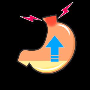 【分子栄養学講座】逆流性食道炎とかヒステリー球とか