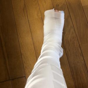 足首 骨折しました