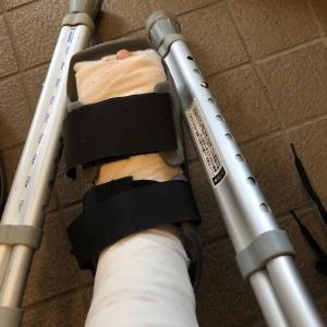 わたしの足首 骨折日記 ①