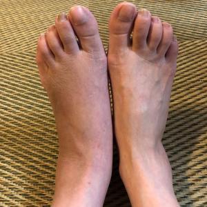 私の足首骨折日記 ⑨