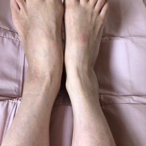 私の足首骨折日記  11