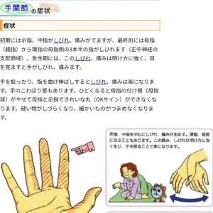 """手根管症候群かも?→""""指が先が突然痺れるのですがなんですかこれ"""""""