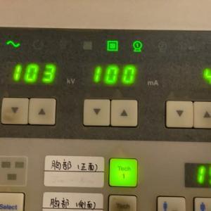 IPhon 11 max X-RAY photo
