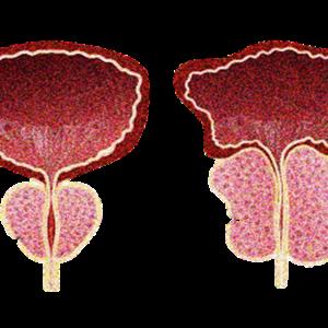 前立腺癌、前立腺肥大症