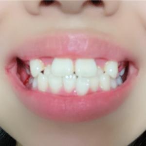 歯列矯正はじめました!