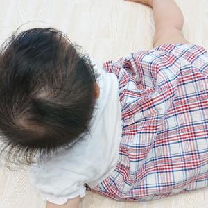 開いていて柔らかい!赤ちゃんの頭のてっぺんにある大泉門について