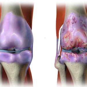 変形性膝関節症について ('_')