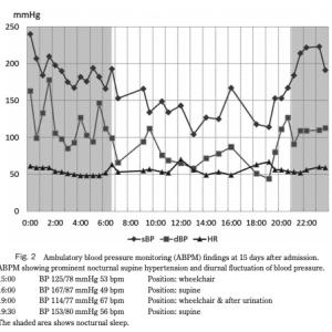 パーキンソン病のCo-morbidityとpolypharmacy:スコットランドの大規模プライマリケアデータベースからの洞察