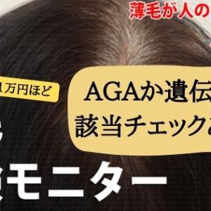 【期間限定】薄毛かAGA脱毛症かセルフチェック!該当したら治療しながらお金も貰える?AGA治験モニター