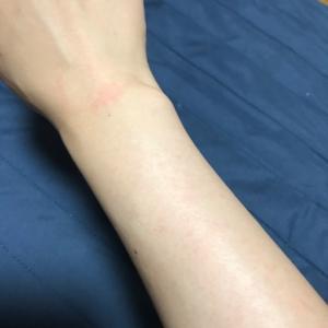 ブラジリアンワックスで腕と手の甲・指毛の脱毛と肌が弱い人のためのアフターケア