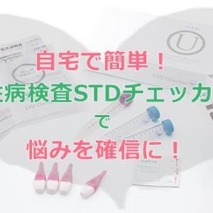 自宅で簡単!正確性高い性病検査STDチェッカーで結婚・妊活前に検査しよう!