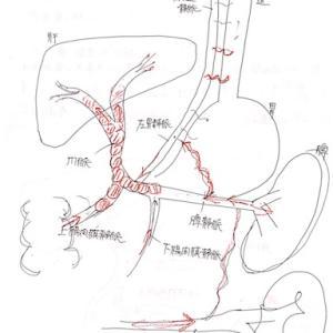 門脈血栓と門脈圧亢進症